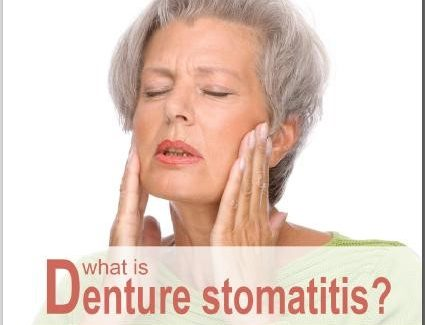 Denture Stomatitis